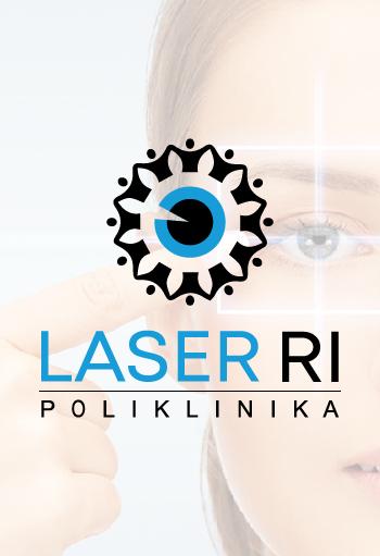 LaserRi